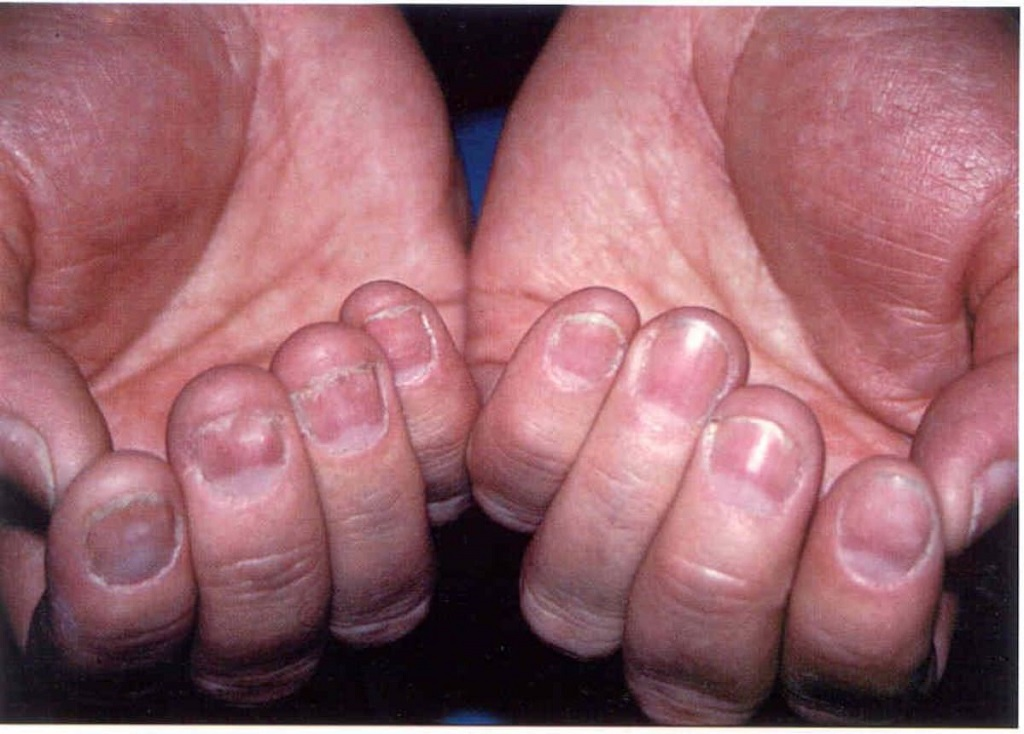 simptomy gribka na rukah