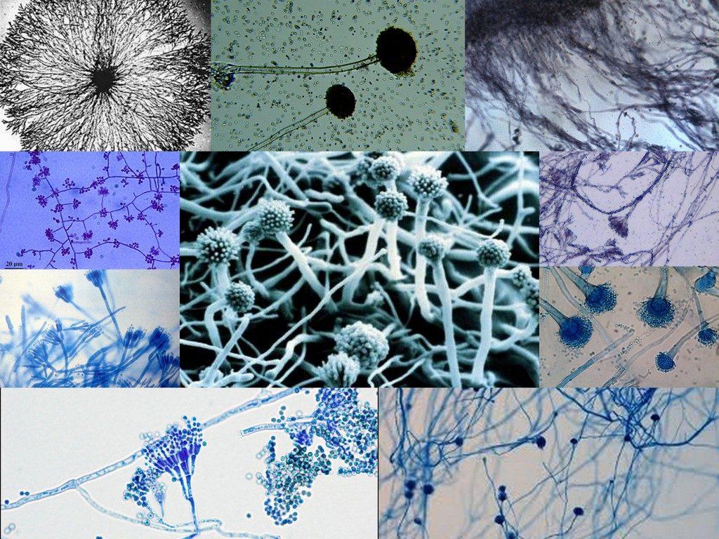 Diagnostika gribka miceliya