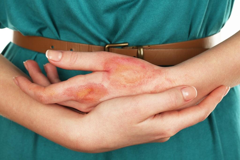 Gribkovyj dermatit