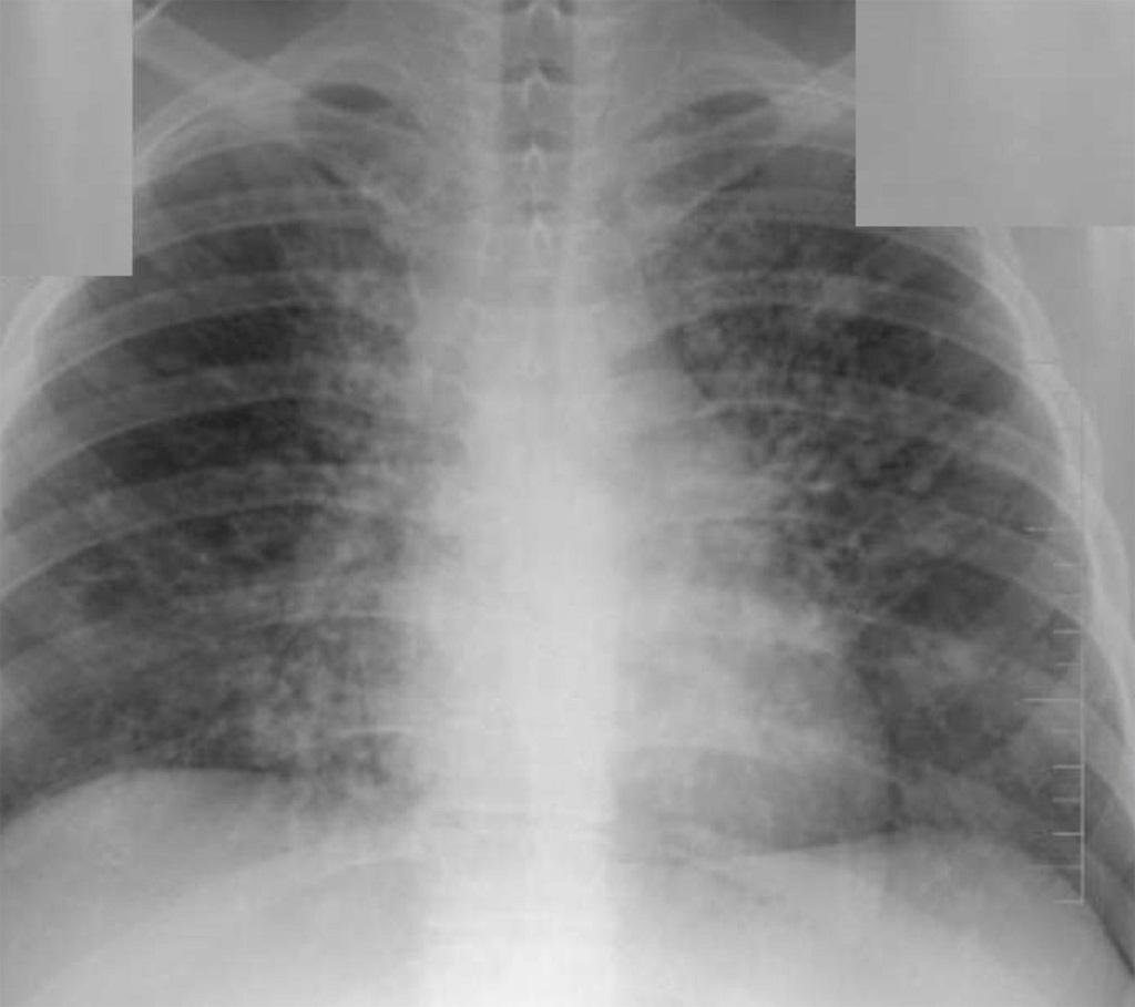 diagnostika aspergillez