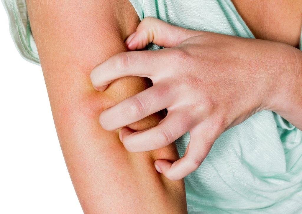 diagnostika dermatofita
