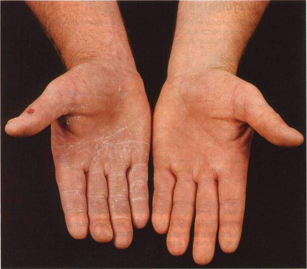 prognoz dermatofita